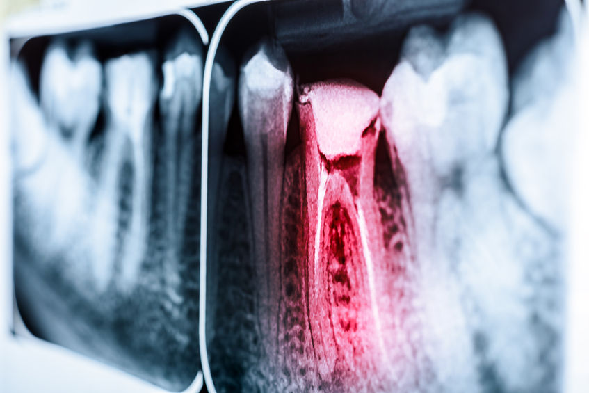 Digitales Dentales Röntgen Tierarzt Hattingen